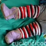 Socks on legs