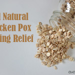All Natural Chicken Pox Itching Relief